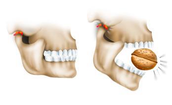 Вправление височно-челюстного сустава боль в суставах и руках утром